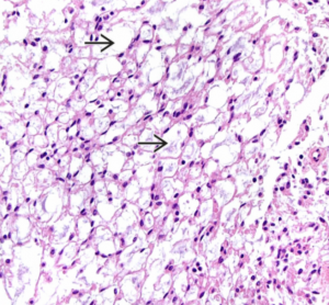 spindle cell monomorphic - microcystic pattern